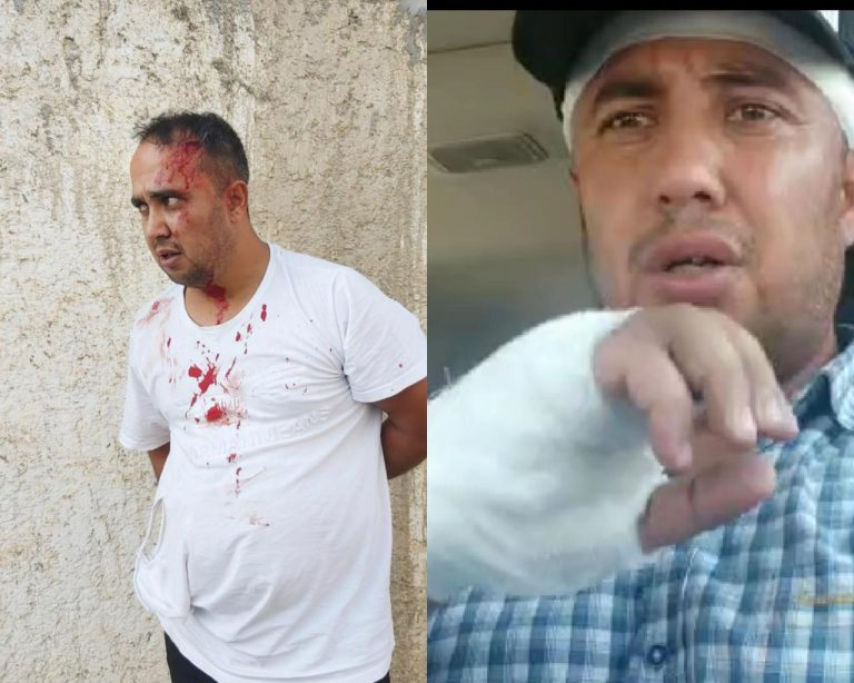 В Самарканде на ташкентского блогера напали с топором