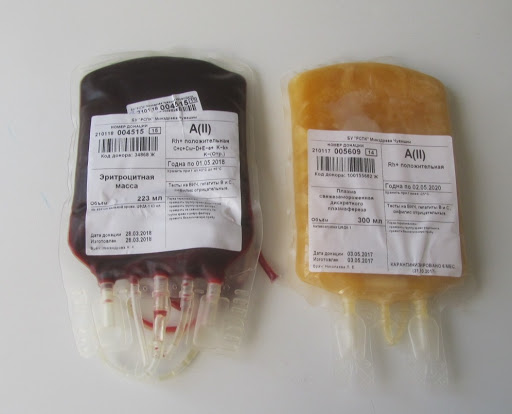 Врачи Узбекистана решили использовать в лечении больных COVID-19  метод переливания сыворотки крови от людей, вылечившихся от новой коронавирусной инфекции.  Аналогичное лечение уже используют врачи в Москве.